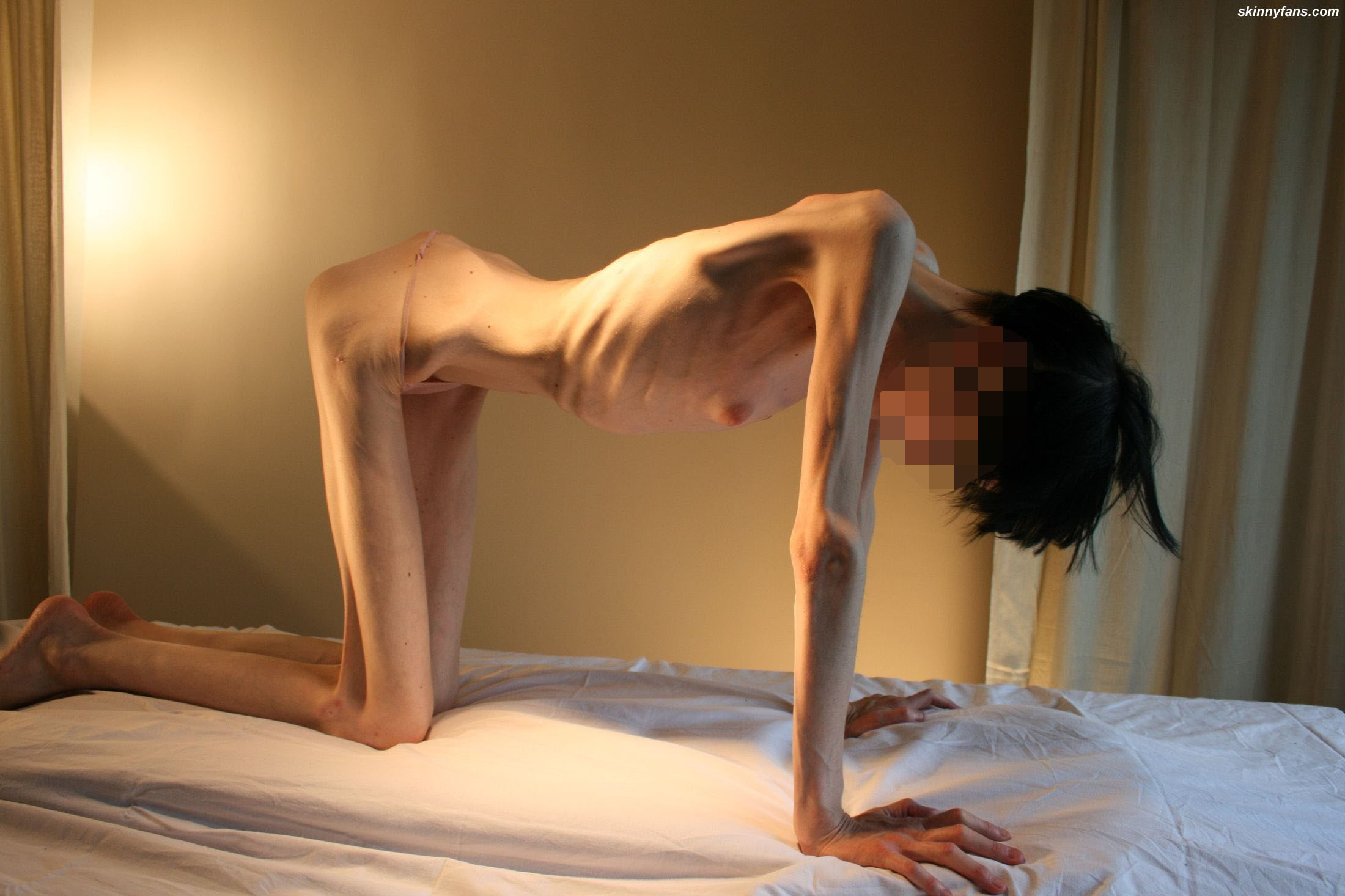 Extreme anorexic nude mature
