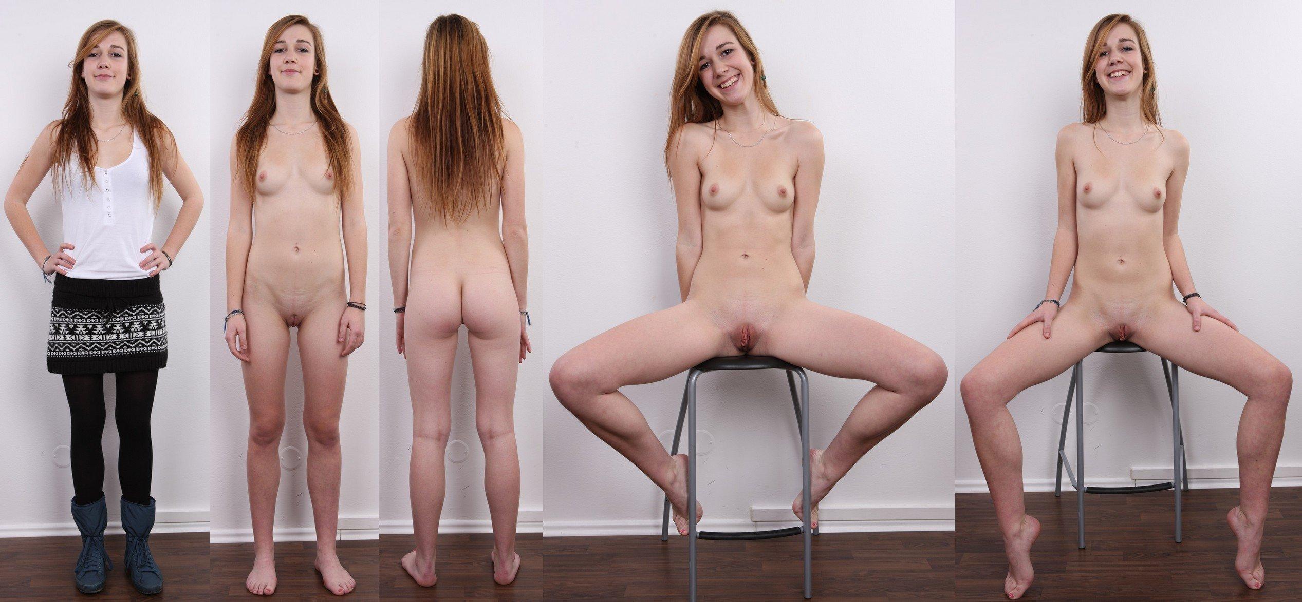 Teen sex photo casting endocardiogram umeoakland